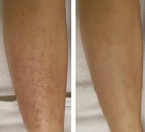 Làm cách nào để chữa khỏi viêm nang lông ở chân?