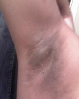 3 tác hại lớn của việc nhổ lông nách bằng nhíp
