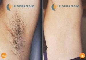 Triệt lông nách bằng New E-light có gây hại gì đến làn da không?