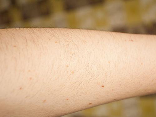 """Tự chế sáp wax lông diệt sạch """"vi-ô-lông"""" trên cánh tay 1"""
