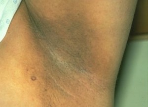 Vùng da nách thâm đen – Hậu quả của triệt lông sai cách