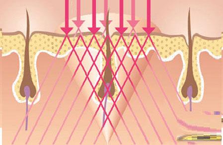 Công nghệ ánh sáng New E-light triệt lông nhẹ nhàng, không đau rát 3