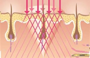 """Quẳng gánh lo """"violong"""" với công nghệ triệt lông mới nhất"""