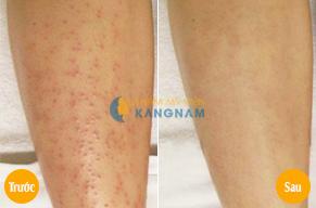 Khám phá cách trị viêm lỗ chân lông không tái phát6