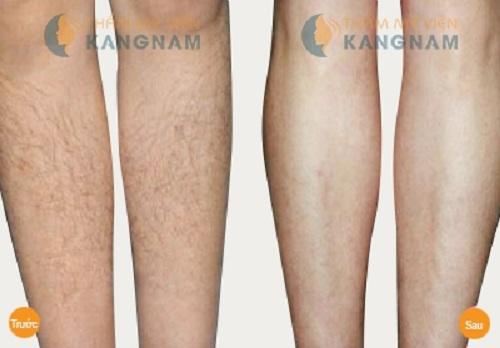 Phỏng vấn chuyên gia phương pháp tẩy lông chân tay vĩnh viễn 5