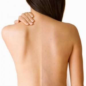 Học cách trị viêm nang lông ở lưng tự tin đón hè