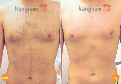 Hình ảnh sau triệt lông vùng ngực của bạn Thành - Hải Phòng