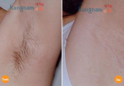 Hình ảnh sau triệt lông nách 4 lần điều trị bạn Ánh Tuyết (096xxxxxxx)