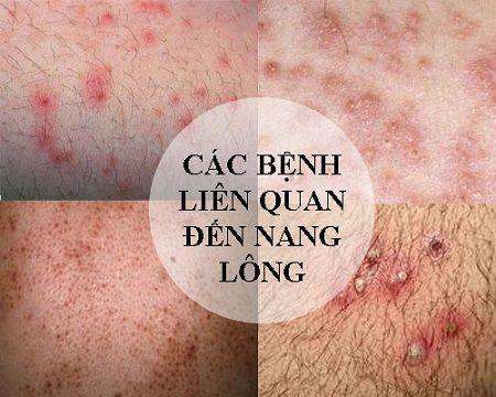 điều trị viêm nang lông 8