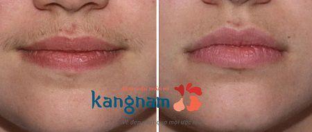 Hình ảnh khách hàng cung cấp trước và sau khi triệt ria mép