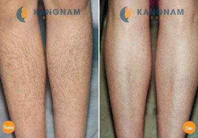 Hiệu quả bất ngờ với công nghệ triệt lông New E-light tại Kangnam 7