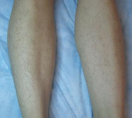 """""""Phanh phui"""" ưu nhược điểm của những cách tẩy lông chân tại nhà 4"""