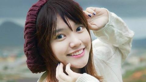 Tự tin nở nụ cười tươi tắn với bí quyết triệt lông ria mép vĩnh viễn 3