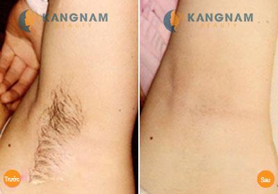 Đâu là phương pháp tẩy lông nách mang lại kết quả vĩnh viễn? 6