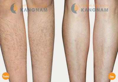 Tẩy lông chân an toàn, triệt để ở đâu tốt nhất? 4