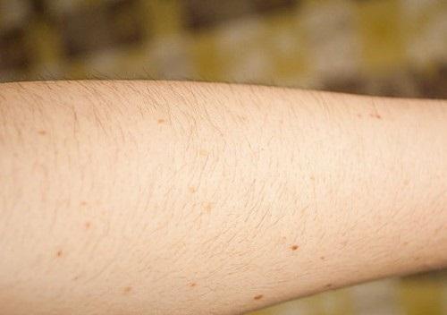 7 điều chị em cần biết khi thực hiện waxing lông tay 1