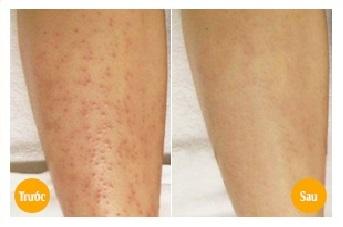 Bày cách trị viêm nang lông vào mùa đông 4