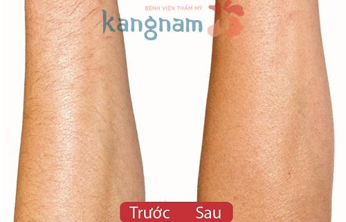 chi-phi-tay-long-toan-than-tai-tham-my-vien-kangnam-nhu-the-nao06