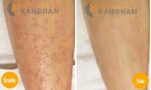 Triệt lông, trị sạch viêm nang lông trong cùng một liệu trình điều trị5