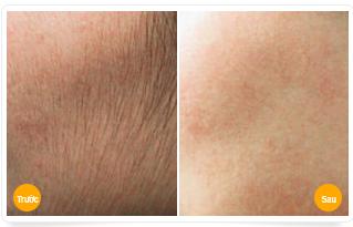 """""""Hé lộ"""" cách tẩy lông mặt vĩnh viễn không đau rát2"""