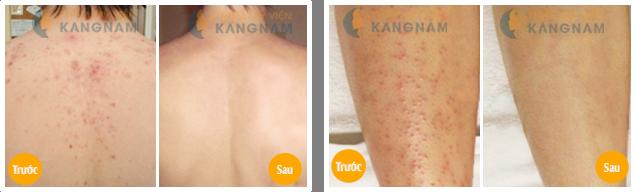 Trị bệnh viêm nang lông bằng CN New E-Light có cho hiệu quả lâu dài1