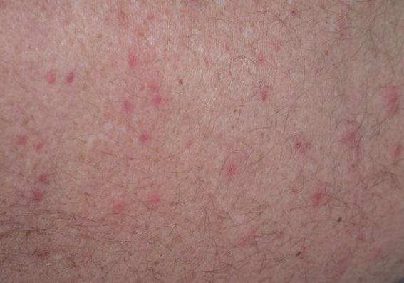 Sử dụng thuốc tẩy lông chân tay có cho kết quả vĩnh viễn không?12