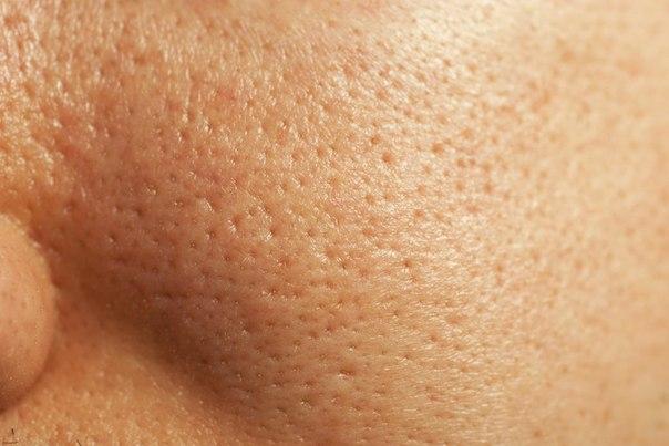 Có cách chữa viêm nang lông ở mặt lâu năm không?1