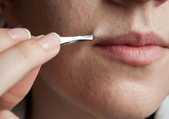Chuyên gia giải đáp: triệt lông mặt mấy lần thì hết?1