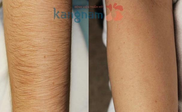 Triệt lông tay kết quả duy trì bao lâu?2