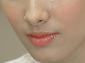 Con gái có ria mép là biểu hiện của chứng tăng lông