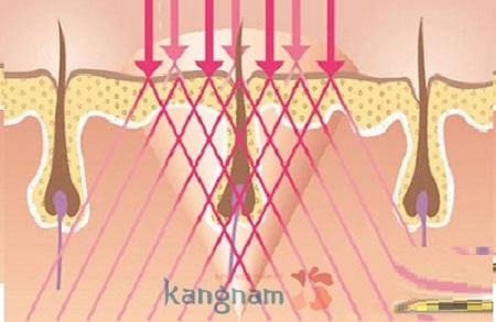 triệt lông vùng kín có hại không