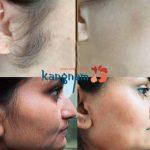Cách tẩy lông mặt vĩnh viễn An Toàn và Hiệu Quả NHẤT