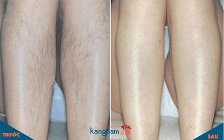 Hình ảnh thực tế khách hàng cung cấp sau khi triệt lông chân