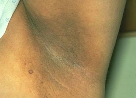 Nhổ lông nách khiến vùng da dưới cánh tay bị sạm đen