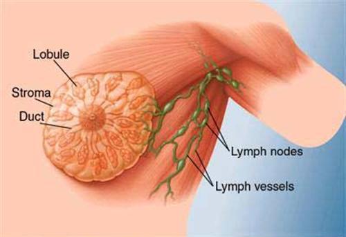 Khả năng dễ bị ung thư vú và ung thư da tăng cao