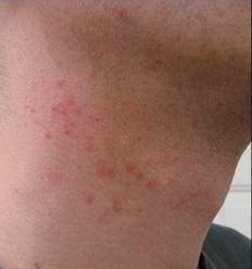 Da nổi mẩn ngứa, đỏ rát sau khi dùng thuốc triệt râu 2 ngày
