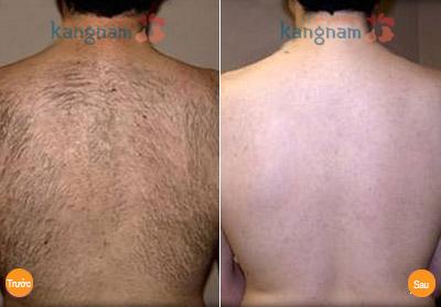 Hình ảnh sau triệt lông vùng lưng của anh Bùi Ngọc Sơn