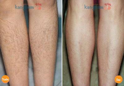 Kết quả sau triệt lông chân 4 lần của bạn Ánh Châu
