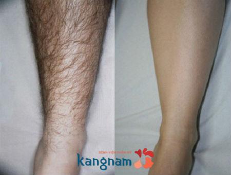 Kết quả sau triệt lông chân anh Hoàng Nam (langnhatu...@yahoo.com)