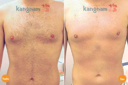 Kết quả tẩy lông ngực và bụng