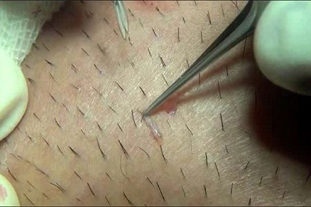 Tác hại khôn lường của việc nhổ lông nách, bạn đã biết?3