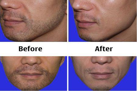 Kết quả trước và sau khi triệt râu quai nón tại Kangnam