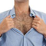 Triệt lông cho nam Diode Laser – Giải pháp làm đẹp phái mạnh không nên bỏ qua