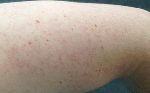 viêm nang lông ở chân