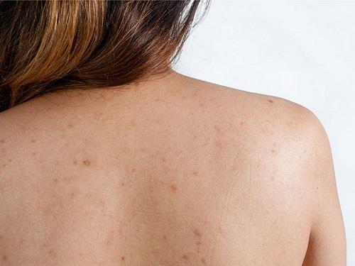 viêm nang lông ở lưng