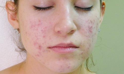 viêm nang lông ở mặt